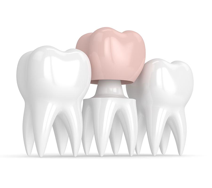 restorative tooth graphic