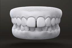excessive spacing between teeth