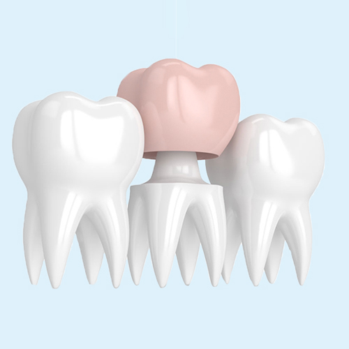 dental crown placement graphic