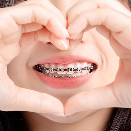 orthodontics dental treatment restores teeth alignment